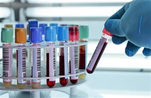 Liệu pháp tế bào gốc