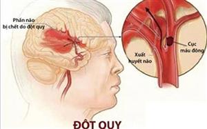 Hiệu quả của Tế Bào Gốc trong điều trị Đột Quỵ Tai Biến