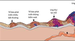 Nguồn gốc ung thư và vai trò của hệ miễn dịch